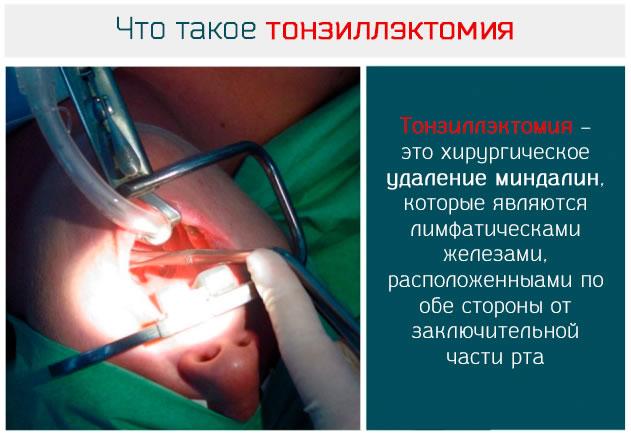 Что такое тонзиллэктомия – удаление миндалин
