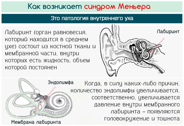 Как развивается синдром Меньера с головокружением и тошнотой