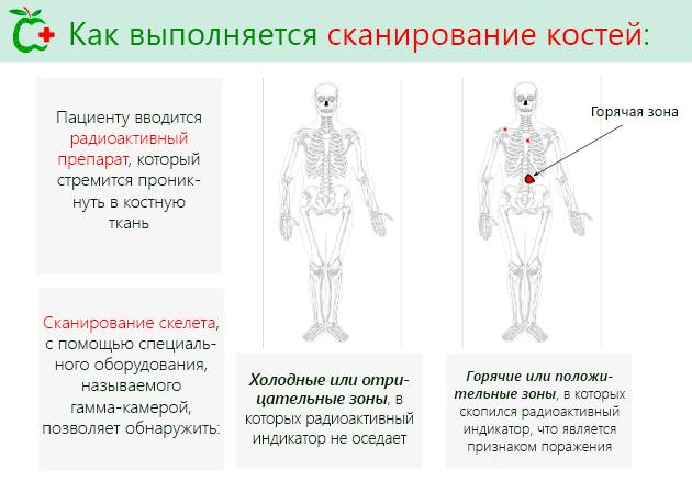 Как выполняется сканирование костей