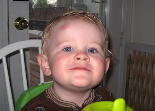 Ребенок с ушибом лба
