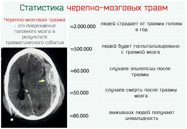 Статистика черепно-мозговых травм в мире