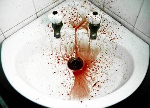 Следы кровавой рвоты в раковине