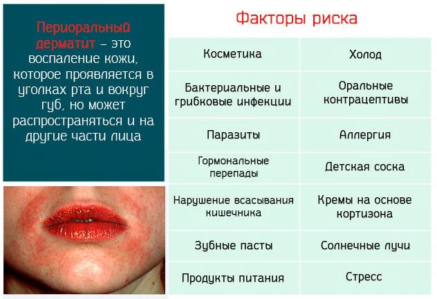 Периоральный дерматит – это воспаление кожи которое проявляется в уголках рта и вокруг губ