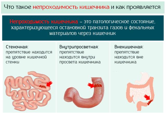 Что такое непроходимость кишечника и как проявляется