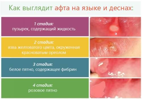 Стадии развития афты в ротовой полости