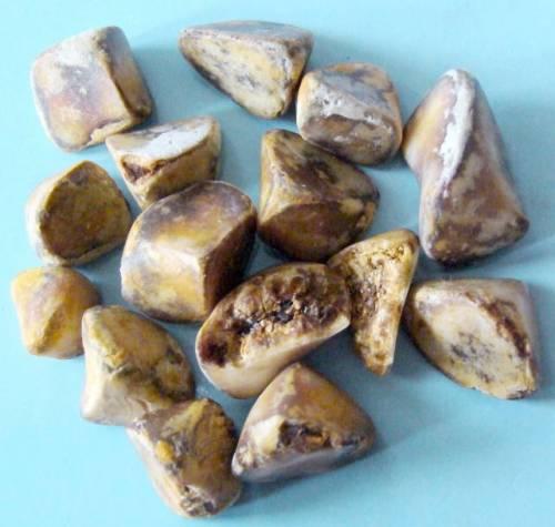 Камни, извлеченные из желчного пузыря