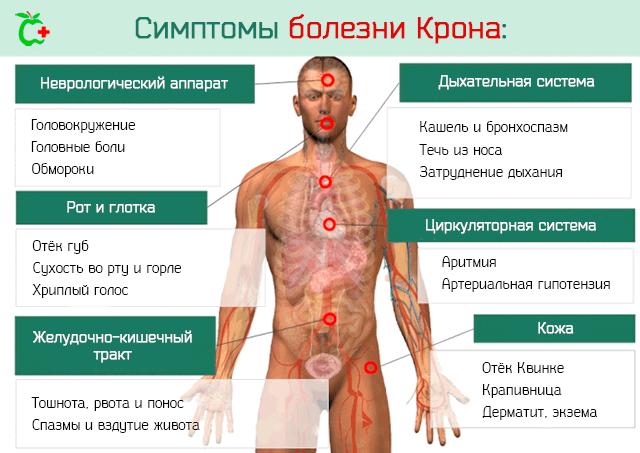 Симптомы болезни Крона и воспаления кишечника у человека
