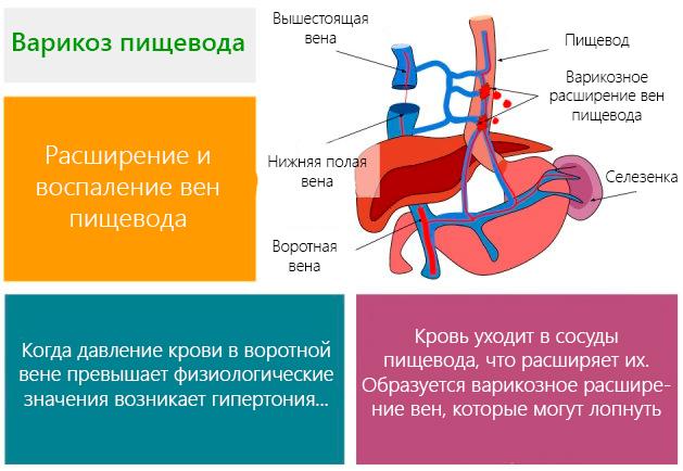 Расширение и воспаление вен пищевода