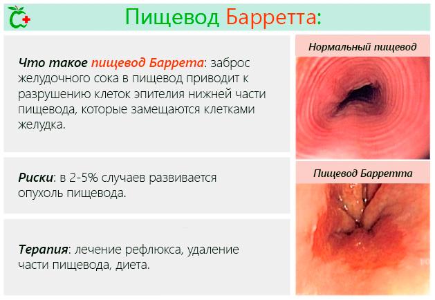 Метаплазия слизистой оболочки пищевода – диета и лечение