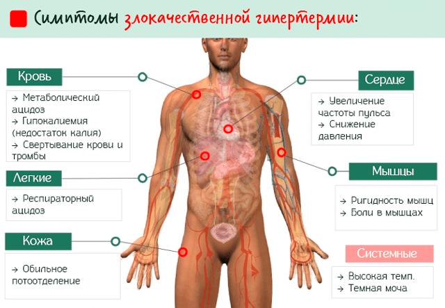 Симптомы злокачественной гипертермии