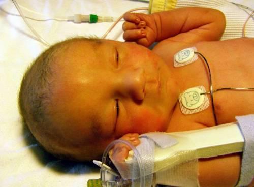 Младенец с желтушностью кожных покровов