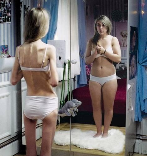 У анорексичных людей нарушено самовосприятие собственного тела