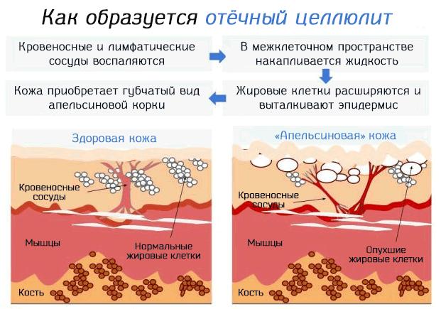 Процесс образования на коже отёчного целлюлита