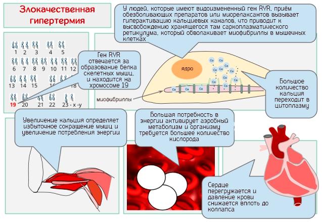 Злокачественная гипертермия – процесс развития