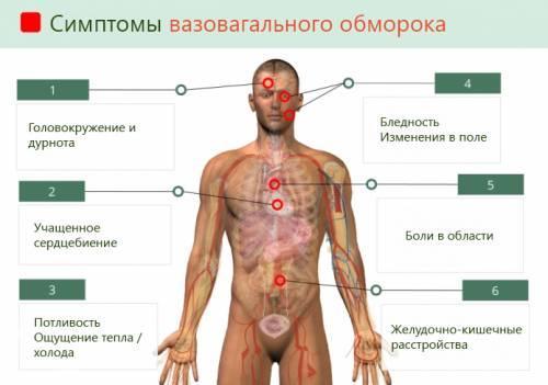 Симптомы вазовагального обморока
