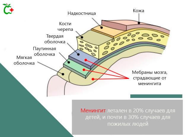 Мозговые оболочки, подверженные менингиту