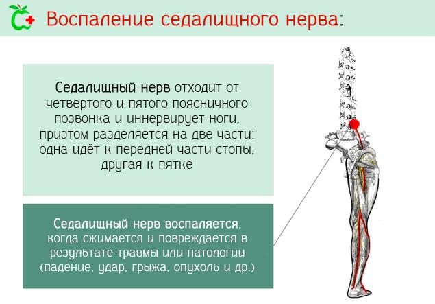Как развивается воспаление седалищного нерва