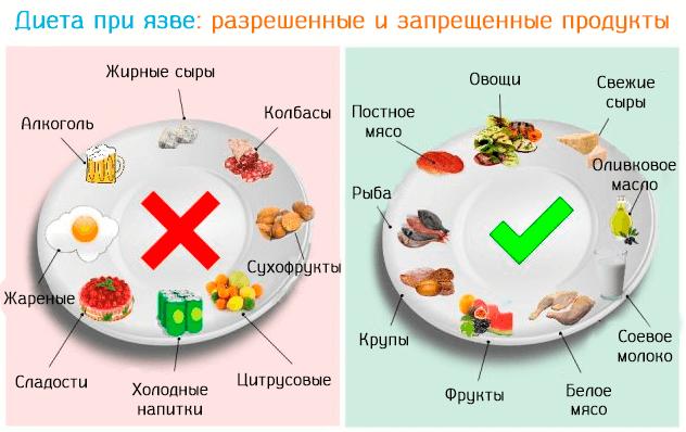 Каких продуктов следует избегать при развитии язвы желудка