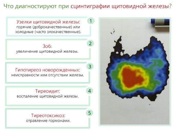 Что диагностируют при сцинтиграфии щитовидной железы