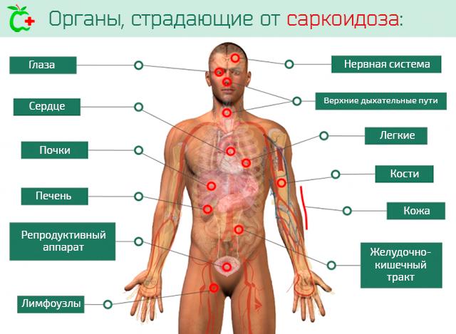 Органы, страдающие от саркоидоза