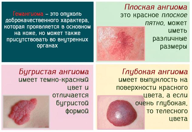 Гемангиома – это опухоль доброкачественного характера нескольких типов
