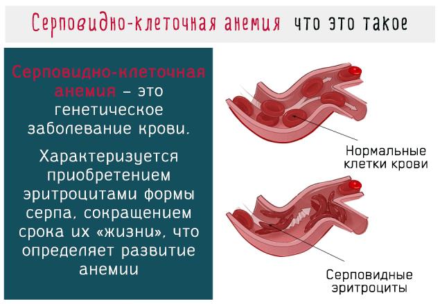 Серповидно-клеточная анемия – это генетическое заболевание крови