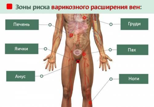 Зоны тела, подверженные варикозу