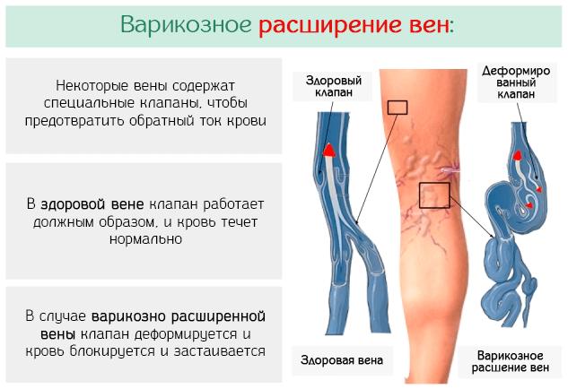 Типичное развитие варикозного расширения вен на ногах