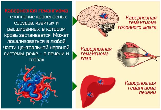 Кавернозная гемангиома – скопление кровеносных сосудов, извитых и расширенных, в котором кровь застаивается