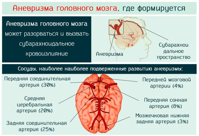Аневризма головного мозга может разорваться и вызвать субарахноидальное кровоизлияние
