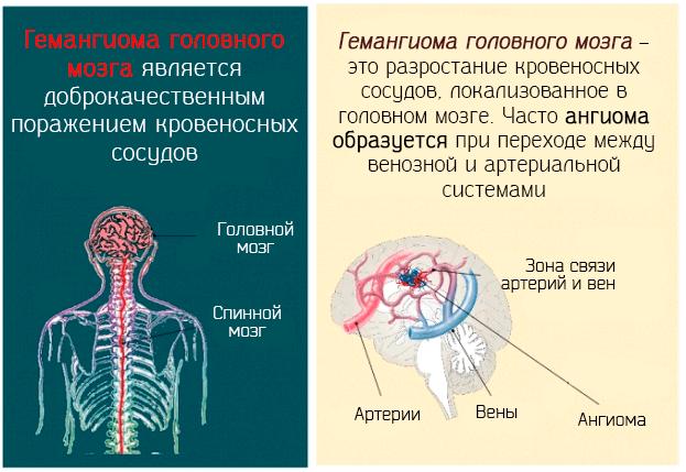 Гемангиома головного мозга является доброкачественным поражением кровеносных сосудов