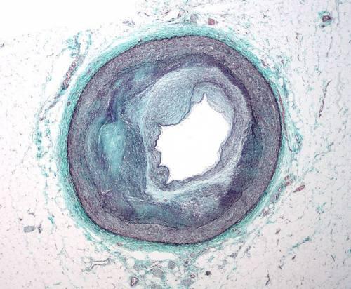 Макрофотография RCA атеросклероза артерии