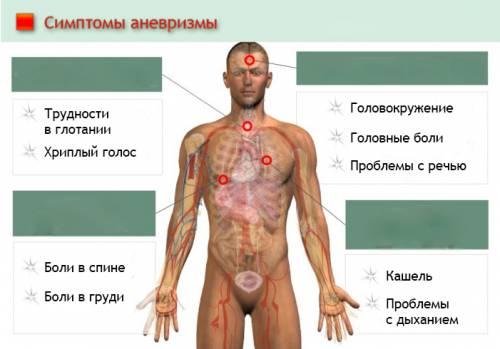 Список основных симптомов аневризмы кровеносных сосудов
