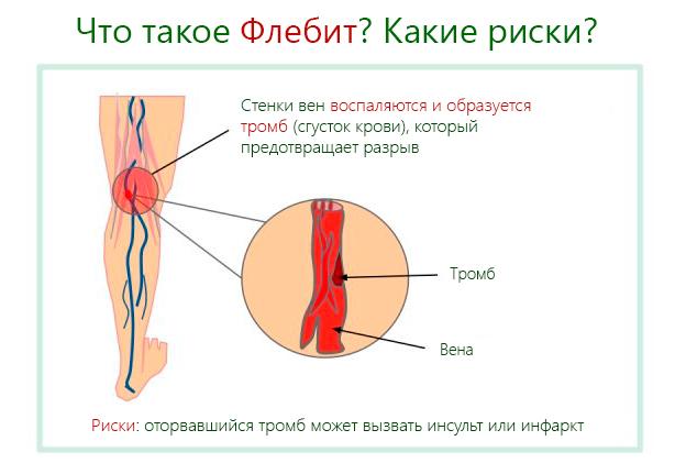 Флебит поверхностных или глубоких вен