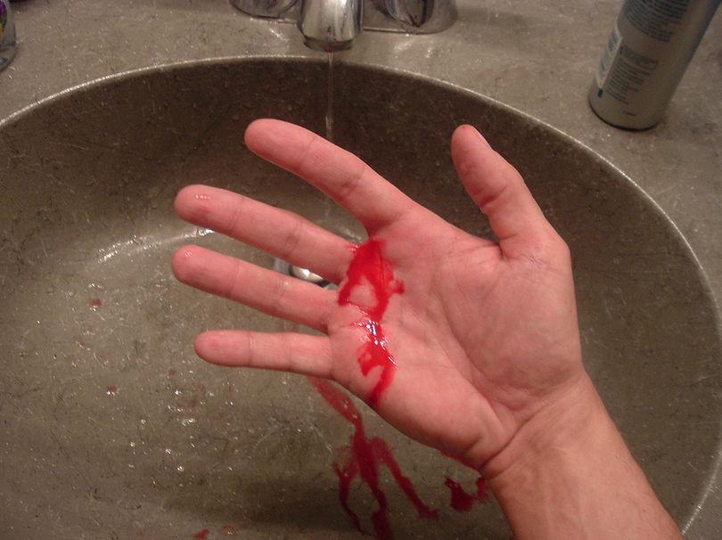 рука в крови фото Служба