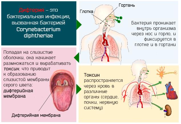Описание главных симптомов дифтерии