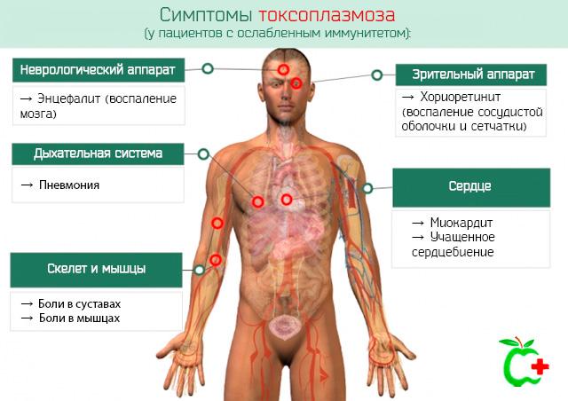 Симптомы токсоплазмоза у пациентов с ослабленным иммунитетом