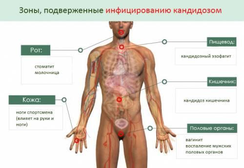 Участки тела, подверженные заражению кандидозом