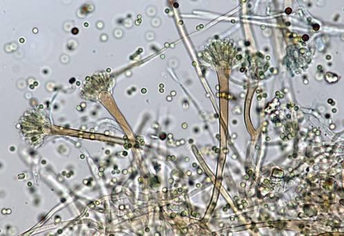 Грибок Aspergillus fumigatus под микроскопом