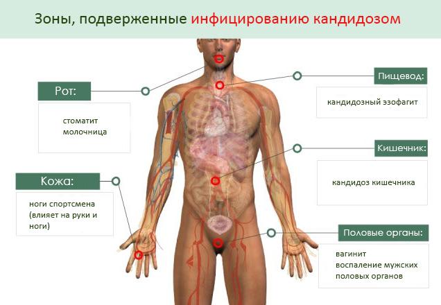 Участки тела, подверженные заражению грибковой инфекцией