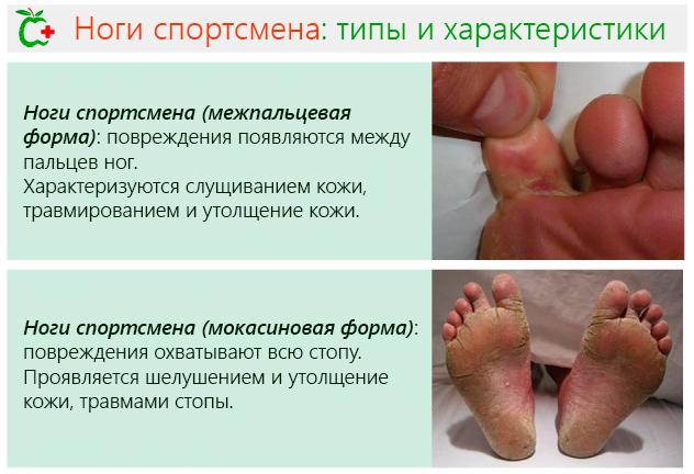 Ноги спортсмена (межпальцевая форма) – повреждения появляются между пальцев ног