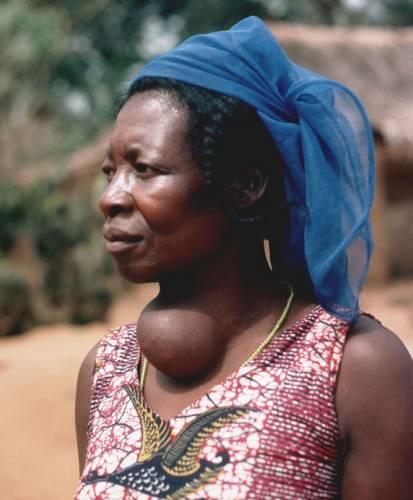 Женщина с зобом щитовидной железы