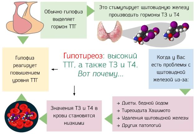 Гипотиреоз: высокий ТТГ, а также Т3 и Т4
