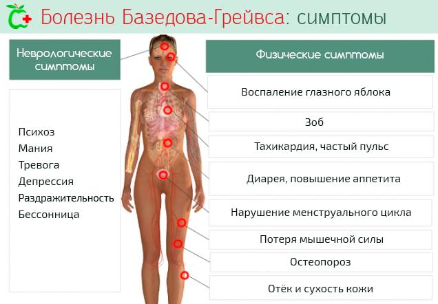 Неврологические и физические симптомы болезни Базедова-Грейвса