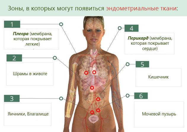 Участки тела, в которых могут появиться эндометриальные ткани