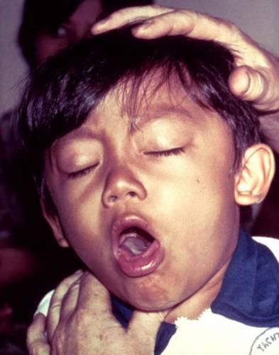 Удушающий приступ коклюша у ребенка