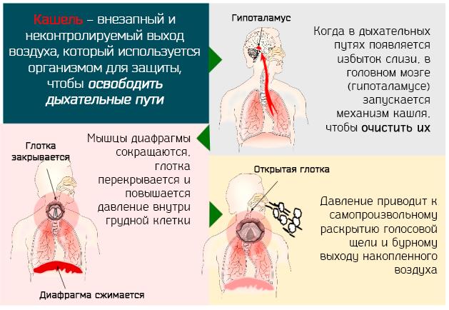 Механизм кашля – внезапный и неконтролируемый выход воздуха