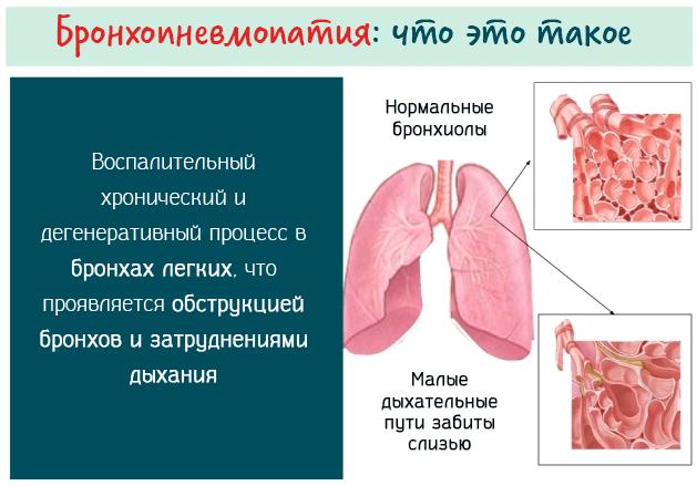Бронхопневмопатия лёгких – что это такое