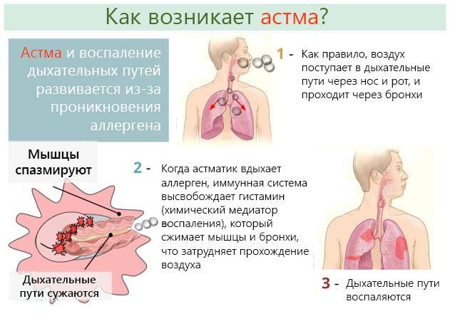 Развитие астмы происходит в три этапа