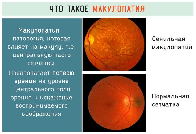 Макулопатия сетчатки глаза что это такое thumbnail